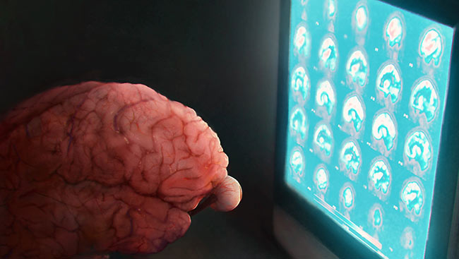 Illustration of a brain looking at a computer screen.