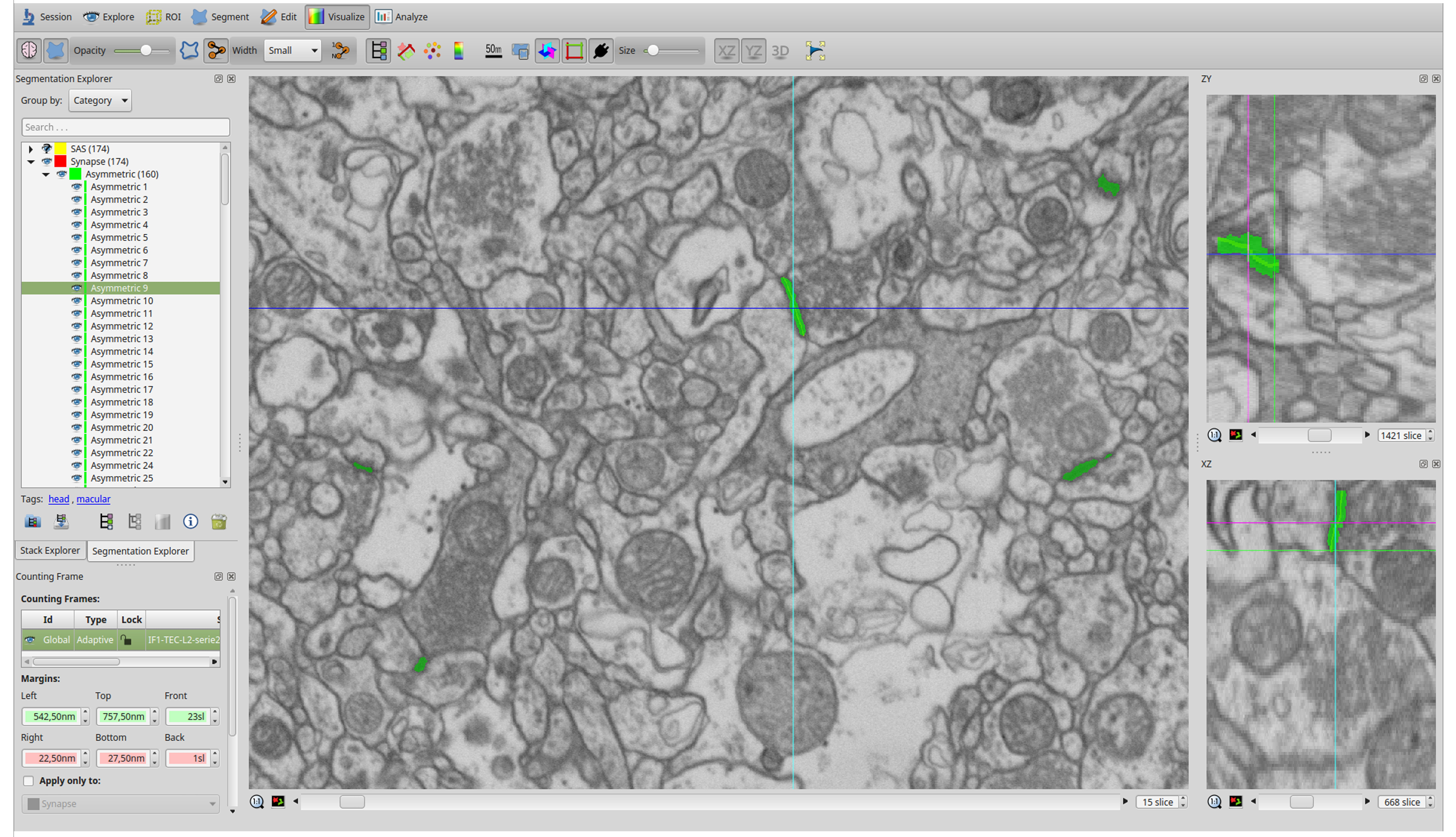 Screenshot of the software user interface (EspINA). In the main window, the sections are viewed through the xy plane (as obtained by FIB/SEM microscopy). The other two orthogonal planes, yz and xz, are also shown in adjacent windows (on the right). The list of identified synapses is shown on the left. Synapses are colored in green. (From Figure 3 of Dominguez-Álvaro et al. 2019, eNeuro).