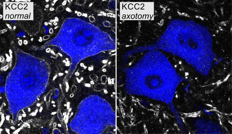 KCC2 on motoneurons retrogradely labeled with Fast Blue from the muscle. The images show normal KCC2 distribution and depletion 14 days after axotomy. The figures correspond to Figures 1A and 1B in Akhter et al., eNeuro, 2019.