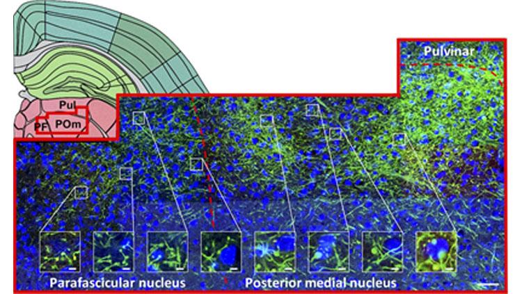 L5 targets a wide range of thalamic nuclei and extrathalamic nuclei, although specific targets vary across injection site. Prasad et al. JNeurosci. 2020; 40(30):5785-5796, Figure 8.