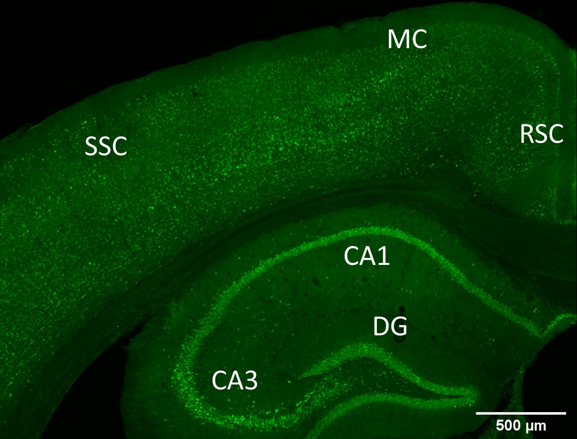 GFP-positive cells in the adult mouse forebrain. Note numerous cells in the hippocampal formation including the dentate gyrus (DG), CA3 and CA1, as well as in the retrosplenial cortex (RSC), the motor and somatosensory cortex (MC and SSC).