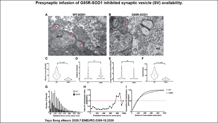 Presynaptic infusion of G85R-SOD1 inhibited synaptic vesicle (SV) availability. Representative EM images illustrate morphology of AZs (labeled with red *) and numbers of SVs in fixed synapses infused with WT-SOD1 and G85R-SOD1.