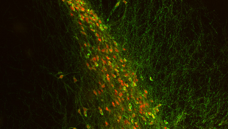 This image shows tyrosine hydroxylase-immunoreactive neurons (green) in substantia nigra pars compacta. These neurons coexpress the dopamine transporter (red). In contrast, less than half of tyrosine-hydroxylase-expressing neurons in the hypothalamus expressed dopamine transporter, and those that don't are required for the autoregulation of growth hormone secretion.